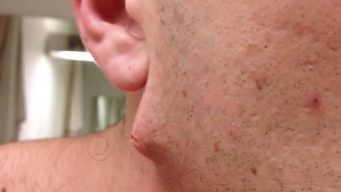 Video: Er erlebt eine ekelige Überraschung, als er sich dieses überlange Haar aus dem Kinn zieht (Video)