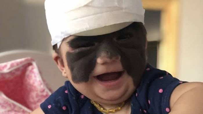 """Video: """"Batman-Baby"""" namens Luna: Erste Behandlung verlief erfolgreich"""