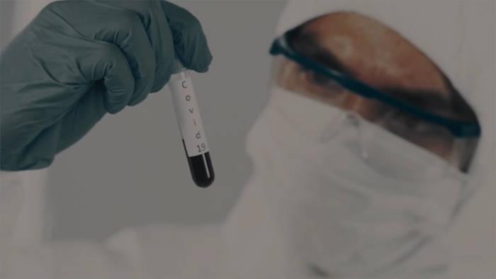 News video: Covid-19: Verfliegt die Immunität nach wenigen Monaten?