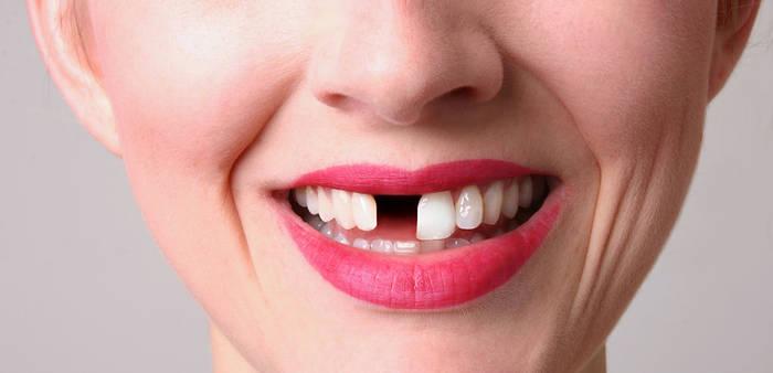 News video: Gebiss: Eine revolutionäre Behandlung lässt Zähne